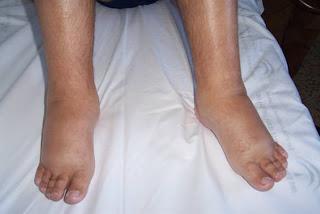 Sobre que maqueta de entrenamiento es posible ocuparse con la várice varicosa